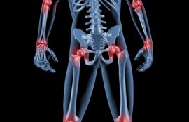 Sciatic Nerve - Chiropractic Care Can Help