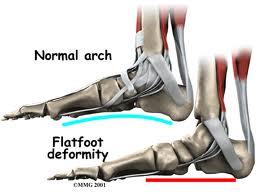 have-your-best-feet-foward-health-wellness-foot-mechanic