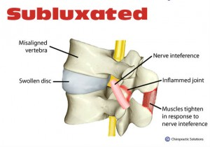 subluxation-health-chiropractic