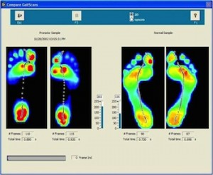 gait-scan-analysis-health-wellness-posture