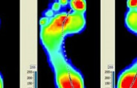 "Orthotics – Do you have your best ""feet"" forward?"