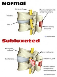 subluxation-do-you-suffer-from-arthritis