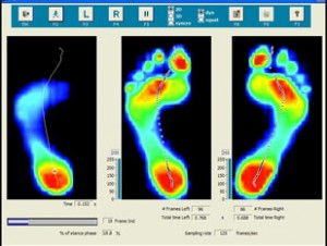 gait-scan-analysis