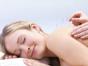acupuncture-needles-on-back-of-beautiful-woman-ottawa-health-sante-clinic