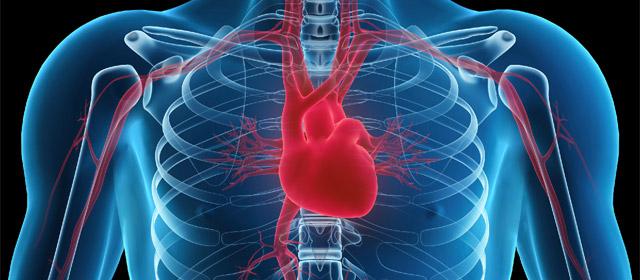 heart-x-ray