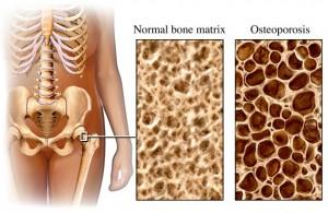 osteoporosis-cariovascular-disease-ottawa-chiropractic