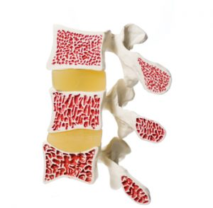 prevent-osteoporosis