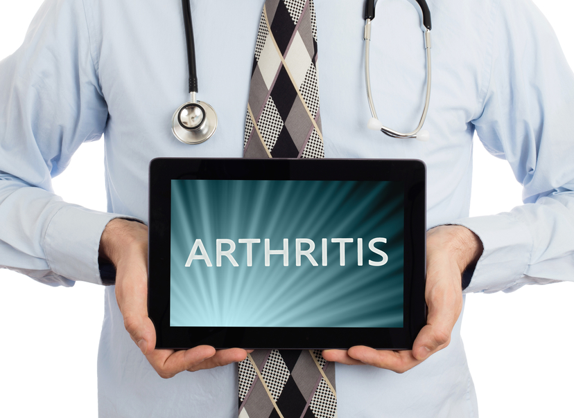 Can Arthritis Be Prevented? What You Need To Know!